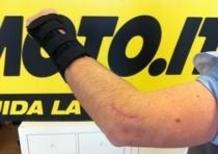 """In moto in salute: Il gomito, un'articolazione """"difficile"""""""